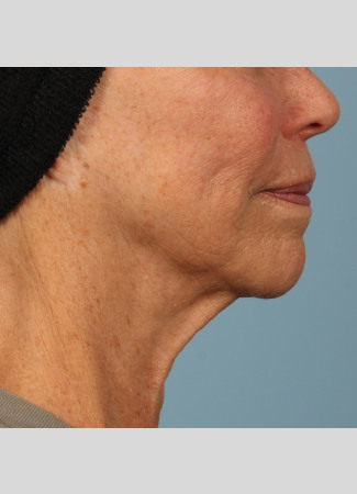 Before Ulthera results: note the slimmer neck and tighter jawline.
