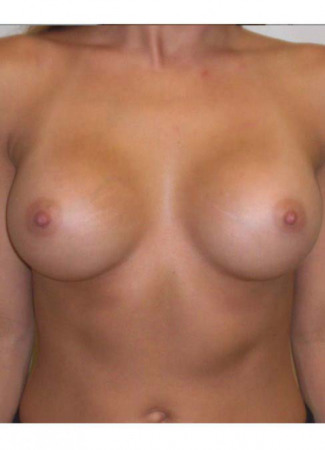 After This 26 year old female chose 325 cc silicone gel implants, which were placed beneath the muscle.