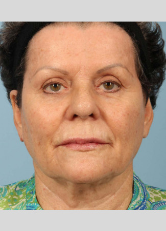 "After This 71 year-old female didn't want any surgery, but wanted a fresher look.  She had 3 syringes of Voluma, as well as Botox for her ""11s"", forehead, and crows' feet.  She is shown about 3 months after her treatment was done."