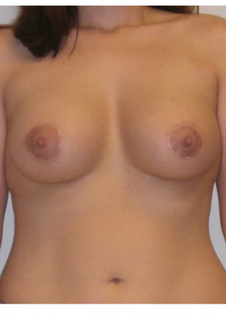 "After This 30 year old female chose 375 cc silicone implants for her breast augmentation.  Her incisions are around her areolae, in order to correct her tuberous (constricted) breast shape at the same time.  Her ""after"" photos were taken about 6 months after surgery."