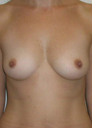 Before This 43 year old female chose 400 cc silicone gel implants for her breast enhancement.