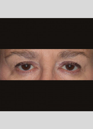 Before This 61 year old female had upper eyelid contouring (blepharoplasty) to remove extra fat and skin from her upper eyelids.