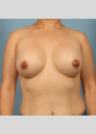 After 450 cc high profile silicone gel augmentation by Dr. Kavali