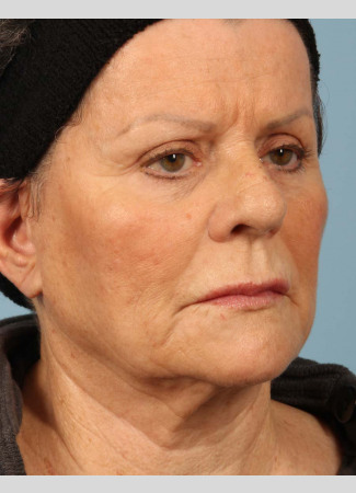 "Before This 71 year-old female didn't want any surgery, but wanted a fresher look.  She had 3 syringes of Voluma, as well as Botox for her ""11s"", forehead, and crows' feet.  She is shown about 3 months after her treatment was done."