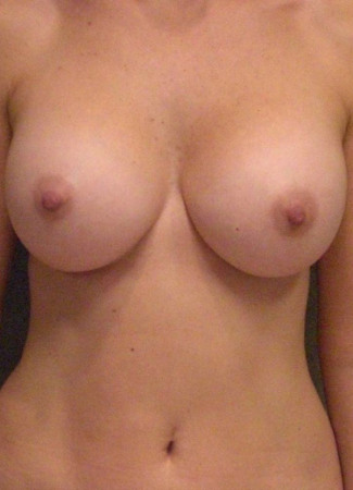 After This 43 year old female chose 400 cc silicone gel implants for her breast enhancement.