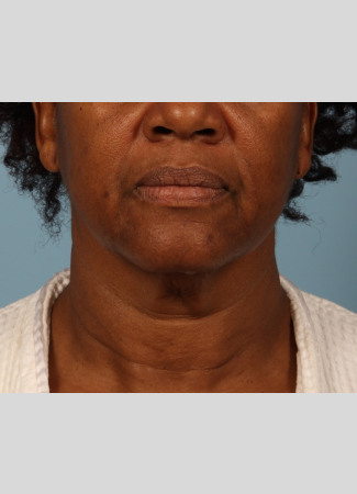 Before This Atlanta woman had a facelift using a SMAS lift technique that lifts and tighten the lower face, jawline, and neck.  She is shown about 6 months after her outpatient surgery was done.