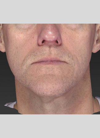 After A slimmer, more taut jawline is shown here after an Ultherapy treatment.