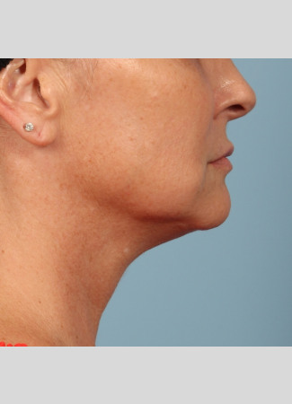 Before This woman met her goals with Dr. Kavali by having a facelift with necklift to tighten her jawline and neck.