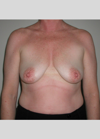 "Before This woman desired fuller breasts and needed a lift at the same time. We used 390 cc gel implants beneath the muscle. Her ""after"" photos were taken about 5 years after her surgery."