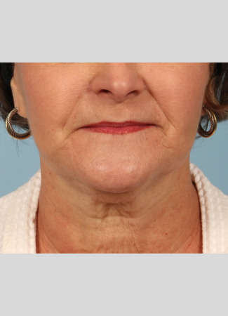 Before This woman is shown about 6 months after her facelift and necklift with Dr. Kavali.