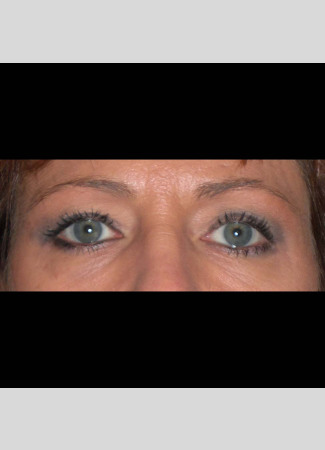 "Before This 50 year old female wanted a more ""open"" look to her eyes.  She had an upper blepharoplasty to remove excess skin and fat from her upper eyelids.  Her ""after"" photos were taken about 1 year after surgery."