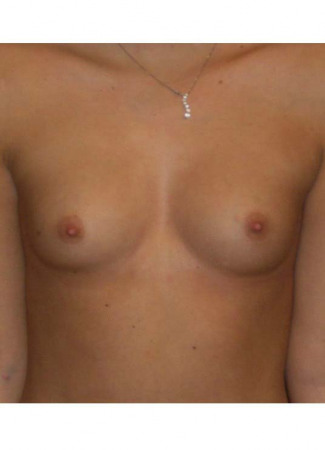 "Before This 18 year old female chose saline implants for her breast augmentation.  Dr. Kavali used 400 cc saline implants, inflated to 420 cc final volume.  They were placed under the muscle through an inframammary crease incision.  Her ""after"" photos were taken about 1 year after her surgery."