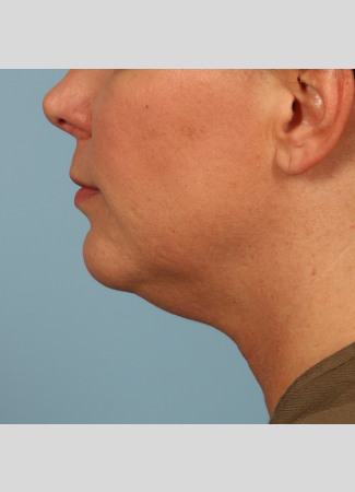 Before Results after 3 Kybella treatments