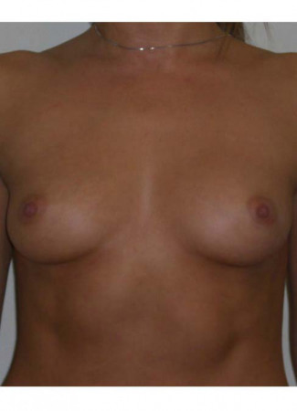 Before This 26 year old female chose 325 cc silicone gel implants, which were placed beneath the muscle.
