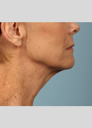 Before A smoother, tighter jawline, neck and lower face after a facelift and necklift.  The after photo is about 1 year after surgery.