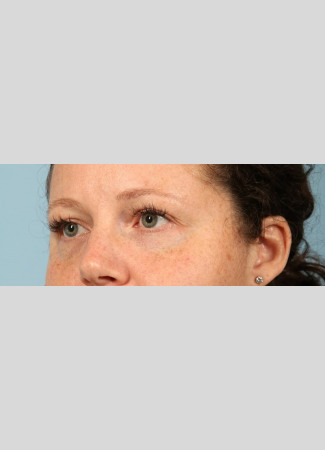 Before After 1 syringe of Juvederm Vollure and 1 syringe of Juvederm Ultra to correct undereye hollows