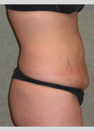 Before This mom had an abdominoplasty (tummy tuck) to remove loose skin an