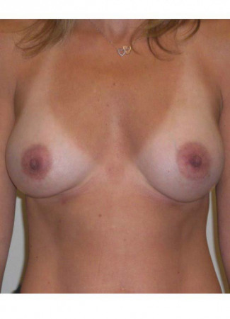 After This Atlanta woman chose 286 cc Allergan gel implants under the muscle, placed through the crease.