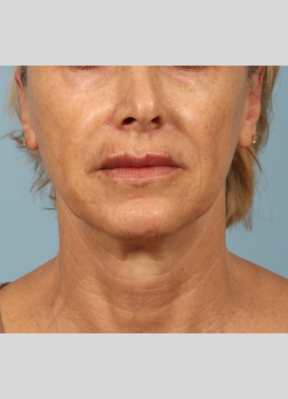 Ulthera | Kavali Plastic Surgery and Skin Renewal Center