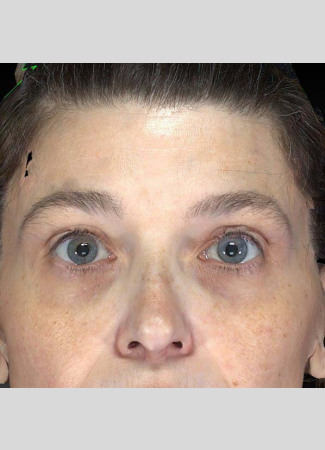 After The power of Ulthera to lift the brows is shown here.
