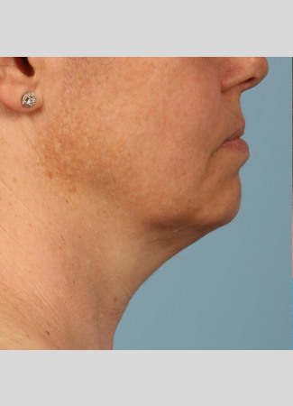 Before Shown after a single treatment with Kybella