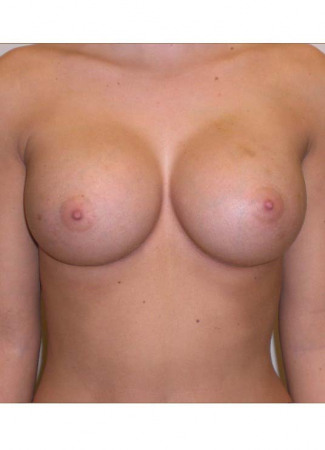 "After This 18 year old female chose saline implants for her breast augmentation.  Dr. Kavali used 400 cc saline implants, inflated to 420 cc final volume.  They were placed under the muscle through an inframammary crease incision.  Her ""after"" photos were taken about 1 year after her surgery."