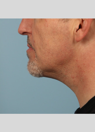 After Results after 2 Kybella treatments