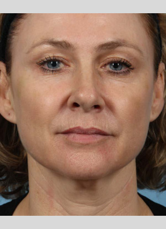 "After This 50 year-old Atlanta woman chose Voluma to restore the youthful curves in her cheeks.  Her ""after"" photos are taken about 1 week after the treatment was done.  The goal is to give a subtle ""lift"" to the cheeks, which also improves the under-eye area."