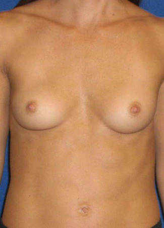 Before This 30 year old female desired breast augmentation, but didn't want to be too large for her frame.  She also had some mild asymmetry, so she had a 240 cc implant for larger side and a 304 cc implant for the smaller.  Her