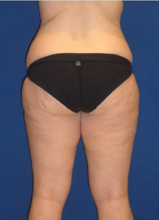 Before This woman had an abdominoplasty (tummy  tuck) at the same time as liposuction of her hips, waist, and inner and outer thighs.