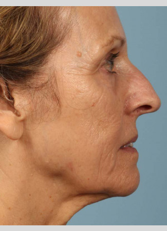Before This 68 year old Atlanta woman had a consultation with Dr. Kavali for facial rejuvenation.  Together, they decided that a variety of fillers would be best.  She had 4 syringes of Voluma in her cheeks, a syringe of Restylane Silk in her lips and around her mouth for the fine lines, and a syringe of Juvederm Ultra Plus in the nasolabial folds (smile lines). She is shown about 2 weeks after her treatment was done.
