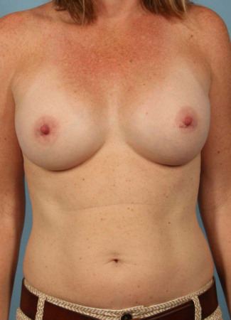 After Dr. Kavali used Allergan gel implants to give this woman a fuller shape.