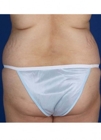 Before This 30 year old female desired more buttock shape, as well as a smaller waist.  Dr. Kavali accomplished these two things by removing fat from her abdomen and waist, then transferring it (fat grafting) to both buttocks and hips.  Note that the remaining loose skin in her abdomen will be addressed by an abdominoplasty (tummy tuck) in the future, as part of this woman's overall surgical plan.
