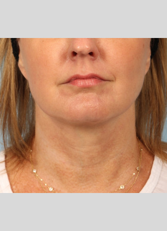 After A facelift and a TCA peel were used in combination to give this Atlanta woman a brighter, tighter look.