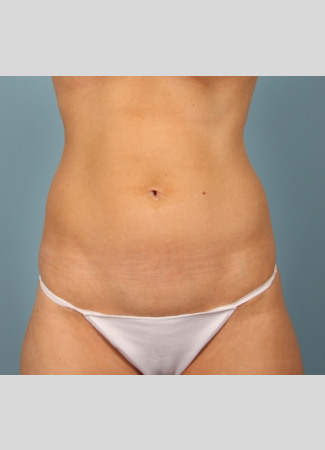Before Power-assisted liposuction of the abdomen and lower back (love handles) in the office under local anesthesia