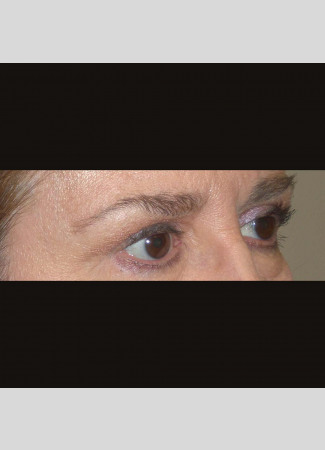 After This 61 year old female had upper eyelid contouring (blepharoplasty) to remove extra fat and skin from her upper eyelids.