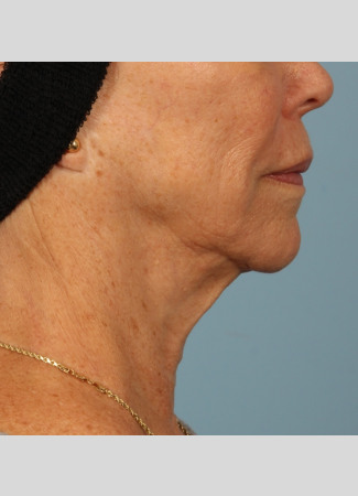 After Ulthera results: note the slimmer neck and tighter jawline.