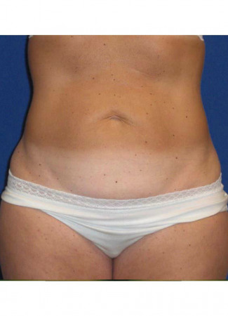 Before This Atlanta mom had an abdominoplasty (tummy tuck) to remove loose skin and tighten her tummy muscles. She also had liposuction of her waist at the same time.  She is shown about 1 year after surgery.