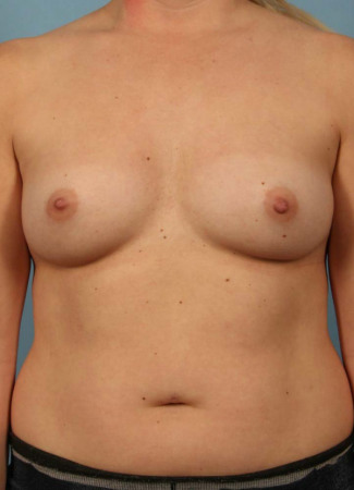 Before 425 cc saline augmentation by Dr. Kavali, under the muscle, scar in the crease