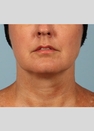 Before A facelift and a TCA peel were used in combination to give this Atlanta woman a brighter, tighter look.