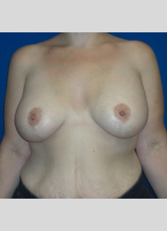 "After This 38 year old Atlanta woman underwent a breast augmentation and lift at the same time.  She had 500 cc high profile silicone gel implants placed under the muscle.  Her ""after"" photo was taken about 4 years after surgery."