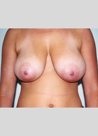 Before This woman in her early 20s wanted smaller, perkier breasts.  This was done using a short scar technique (SPAIR).