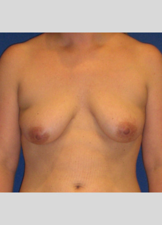 "Before This woman in her mid-30s desired breast augmentation (implants) and a lift. She had some breast asymmetry, so a 371 cc gel implant was used on the left and a 339 cc gel implant was used on the right. Her ""after"" photos were taken about 4 years after her surgery."