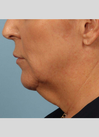 Before This 58 year old Atlanta woman chose Kybella with Dr. Kavali to reduce the fullness in her neck.  Her results are shown 6 months after 3 Kybella treatments. She is thrilled with her results!