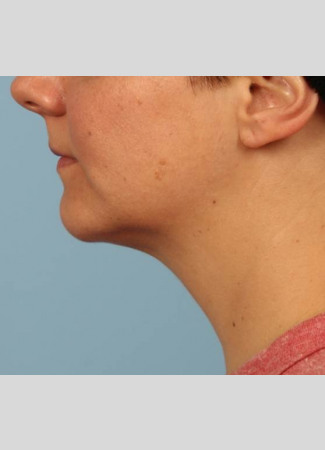 After Results after two Kybella treatments