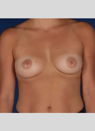 "Before This 30 year old female chose a 234 cc silicone gel implant for her breast augmentation, and Dr. Kavali matched the opposite side using a 260 cc silicone gel implant. Her implants are beneath the muscle and were placed through the inframammary crease (breast fold incision).  Her ""after"" photos were taken about 1 year after surgery."