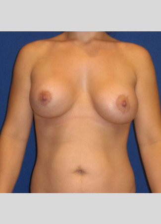 "After This Atlanta woman presented with significant breast asymmetry. Dr. Kavali used a 400 cc saline implant on the right and a 330 cc saline implant on the left. The ""after"" photo was taken about 6 months after surgery."