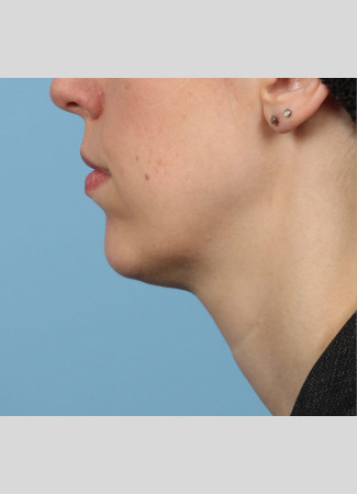 Before Results after a single treatment with Kybella
