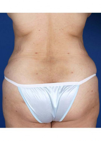 After This 30 year old female desired more buttock shape, as well as a smaller waist.  Dr. Kavali accomplished these two things by removing fat from her abdomen and waist, then transferring it (fat grafting) to both buttocks and hips.  Note that the remaining loose skin in her abdomen will be addressed by an abdominoplasty (tummy tuck) in the future, as part of this woman's overall surgical plan.