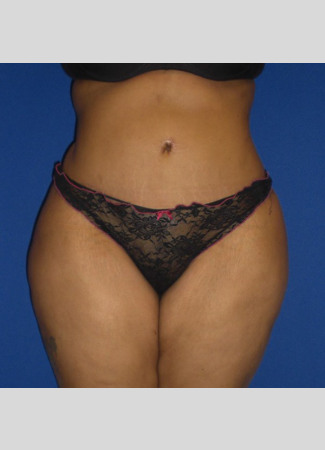After This Georgia mom had an abdominoplasty (tummy tuck)  to remove loose skin and tighten her tummy muscles. She also had liposuction of her waist at the same time.  She is shown about 6 years after surgery.